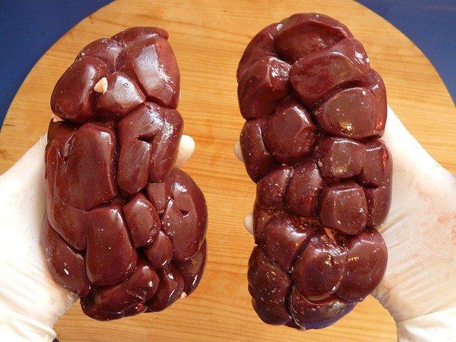 Obat Herbal Gagal Ginjal, Menyembuhkan Tanpa Cuci Darah